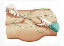 операция руки убрать жир